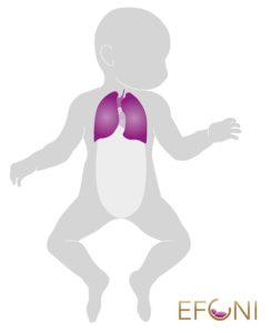 Graphic of a baby with highlighted lungs